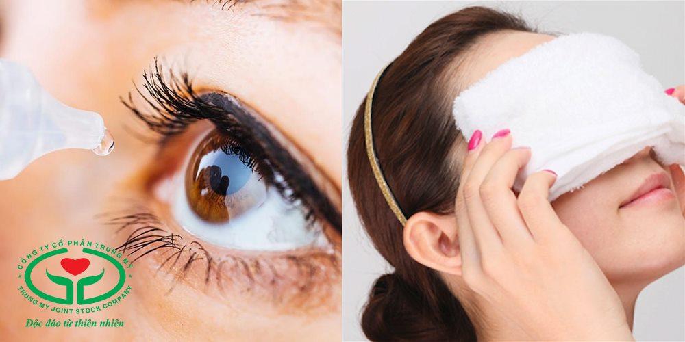Nhỏ mắt, đắp khăn ấm có thể giúp giảm nhanh tình trạng khô mắt